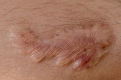 A scar is an area of fibrous tissue that replaces normal skin after an injury. A scar is an area of fibrous tissue that replaces normal skin after an injury on stock photography