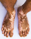 Scar bare feet Stock Photo