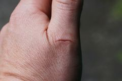 A cut on the finger of a man stock image