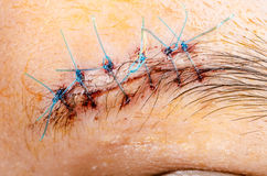Scar form stitched up skin. Stock Image