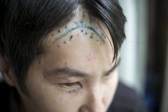 Scar on the head Stock Photography