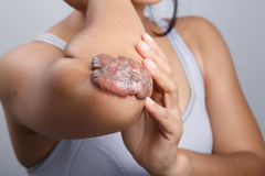 Scar on human skin. Keloid on elbow royalty free stock image