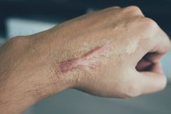 Scar on human skin keloid on hand.  stock photography
