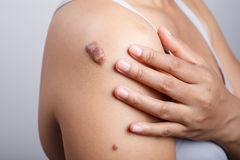 Scar on human skin. Keloid on shoulder royalty free stock image