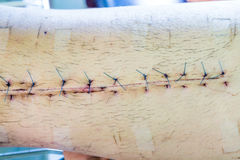 Scar from operation suture Royalty Free Stock Photo