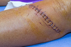 Scar from operation suture with a blue fiber at leg patient Royalty Free Stock Photos