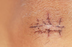 Scar From Recovering Stitches Stock Image
