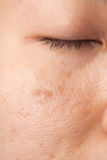 Scar skin problem. Women with oily face with scar and skin problem Royalty Free Stock Photos