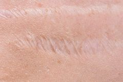 Scar on the skin. Human scar close-up stock images