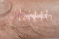 Scar with stitches on the wrist after surgery. Fracture of the bones of the hands.  stock images