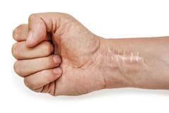 Scar with stitches on the wrist after surgery. Fracture of the bones of the hands in fist isolated on white background royalty free stock images