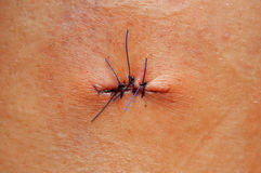 Scar with three stitches after freckle Stock Photos
