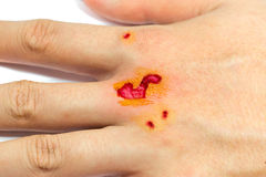 Scar wound of hand injury isolated on white background Royalty Free Stock Photo