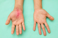 Scar wound on swollen and inflamed hand Stock Image