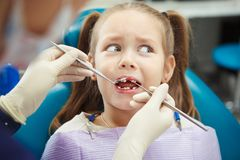 Scared child sits at dentist chair with open mouth. Without front tooth while doctor examines her in sterile rubber gloves with special metal medical Royalty Free Stock Image