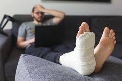 Scared man with a broken leg at home. Young man with a broken leg is sitting on the sofa at home stock photos