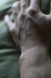 Scarred Wrist. A vertical image of a scarred wrist and hand royalty free stock image