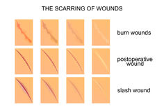 The scarring of wounds Stock Photo