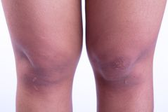 Scars. Caused by accidents on the woman's legs royalty free stock photography
