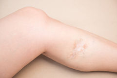 Scars on leg wound from missile Stock Photos