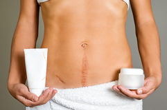Scars therapy Stock Photography