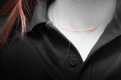 Scars on woman`s neck from thyroid surgery. Hospital or suicide concept stock photography