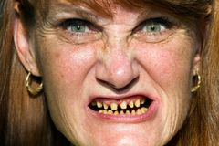 Scary Face Bad Teeth. Mature woman whose teeth have be ground down in preparation for dental crowns makes a scary face stock photo