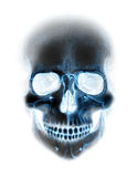 Scary x-ray blue neon skull on white stock images