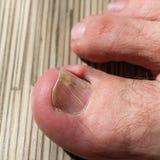 Schädigender Zehennagel Ein Bild eines Kleinkindes, das ein Buch liest Der Daumen auf dem Bein des Mannes Stockbild