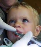 Schätzchen auf zahnmedizinischer Prüfung Lizenzfreies Stockbild