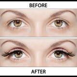 Schönheits-Operationen - Platzierung der künstlichen Wimpern stockfotos