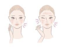 Schöne Frau gestört mit rötlicher, empfindlicher Haut Stockfotos