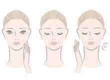 Schöne Frau mit ärgerlichen Pimples Stockfotos