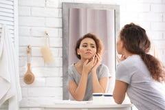 Schöne junge Frau mit Akneproblem lizenzfreie stockbilder