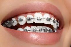 Schöne weiße Zähne mit Klammern Zahnpflegefoto Frauenlächeln mit ortodontic Zubehör Orthodontiebehandlung Lizenzfreie Stockfotografie