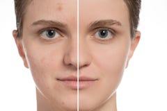 Schönes junges Mädchen mit roter und weißer Akne auf ihrem Gesicht vorher stockbilder