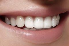 Schönes Lächeln mit dem Weiß werden von Zähnen Zahnmedizinisches Foto Makronahaufnahme des perfekten weiblichen Munds, lipscare r Stockfotografie
