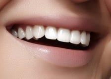 Schönes Lächeln mit dem Weiß werden von Zähnen Zahnmedizinisches Foto Makronahaufnahme des perfekten weiblichen Munds, lipscare r Lizenzfreies Stockfoto