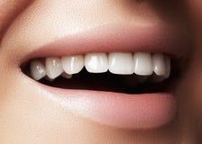 Schönes Lächeln mit dem Weiß werden von Zähnen Zahnmedizinisches Foto Makronahaufnahme des perfekten weiblichen Munds, lipscare r Lizenzfreies Stockbild