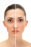 Schönheitskonzept vor und nach retouch Lizenzfreies Stockfoto
