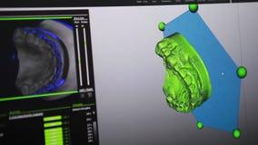 Schaffung auf dem Computermodell der zukünftigen Prothese der Zähne stock video footage