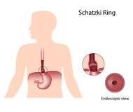 Schatzki ring Royalty Free Stock Image