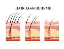 Schema di perdita di capelli royalty illustrazione gratis