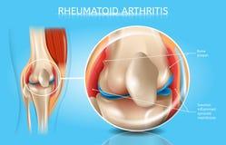 Schema medico di vettore di artrite reumatoide illustrazione di stock