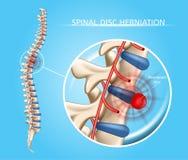 Schema medico di vettore spinale dell'ernia del disco royalty illustrazione gratis