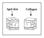 Schema of the skin under the influence of collagen. Royalty Free Stock Images