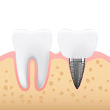Schematic illustration of dental prosthetics, denture. Side view Royalty Free Stock Photos