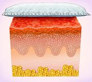 Schematic illustration of a segment of skin affected by diaper rash. It is a skin disease with possible irritation of the dermis / epidermis in areas with more Royalty Free Stock Image