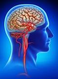 Schematische en beschrijvende illustratie van het aneurisma in de menselijke hersenen stock illustratie