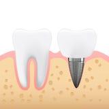 Schematisk illustration av tand- prosthetics, tandprotes Royaltyfria Foton